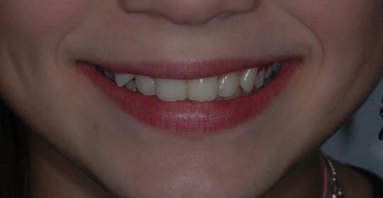 brescia-ortodonzia-lapini-primaedopoCarnat Irina 017