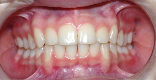 brescia-ortodonzia-lapini-primaedopoK.I. post 01