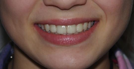 brescia-ortodonzia-lapini-primaedopoK.I. post 05