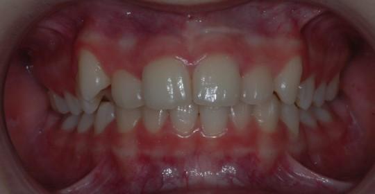 brescia-ortodonzia-lapini-primaedopoK.I. pre 01